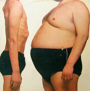 Gordo e Magro