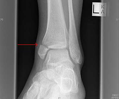 fratura-tornozelo1