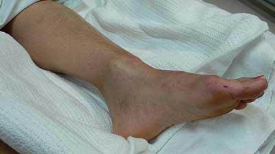 tornozelo-luxacao