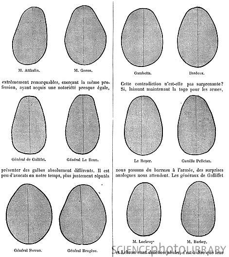 Tipos de crânio e uma tentativa de determinar em quais profissões quais formatos de crânio eram mais comuns. França, 1891.