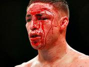 mma-fighter-blood