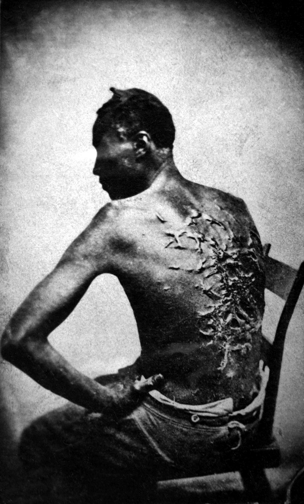 A escravidão deixa marcas. Na pele. Na história. Em nós.