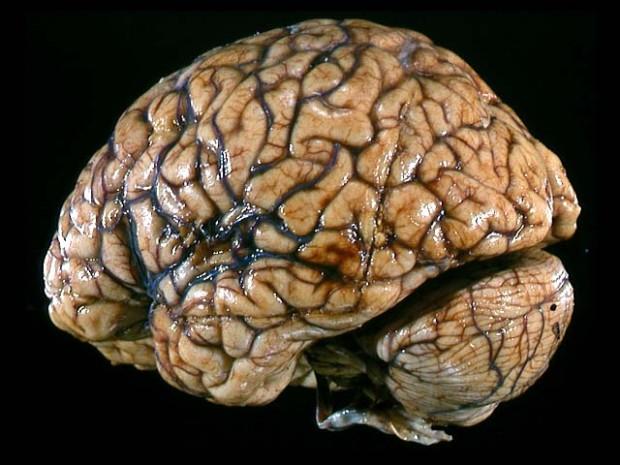 brainlg